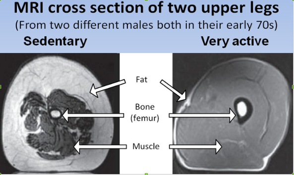 William Cortvirendt muscle cross section