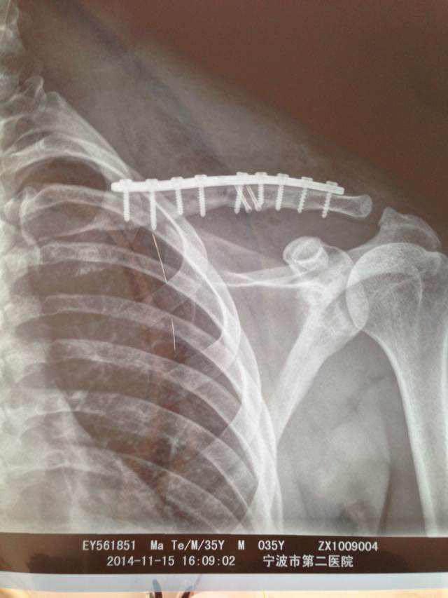 Matt Galat X-Ray